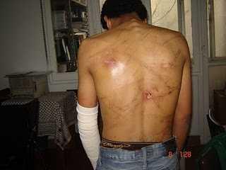 Ein von der Armee gefolterter Mann. Foto: El-Nadim Center